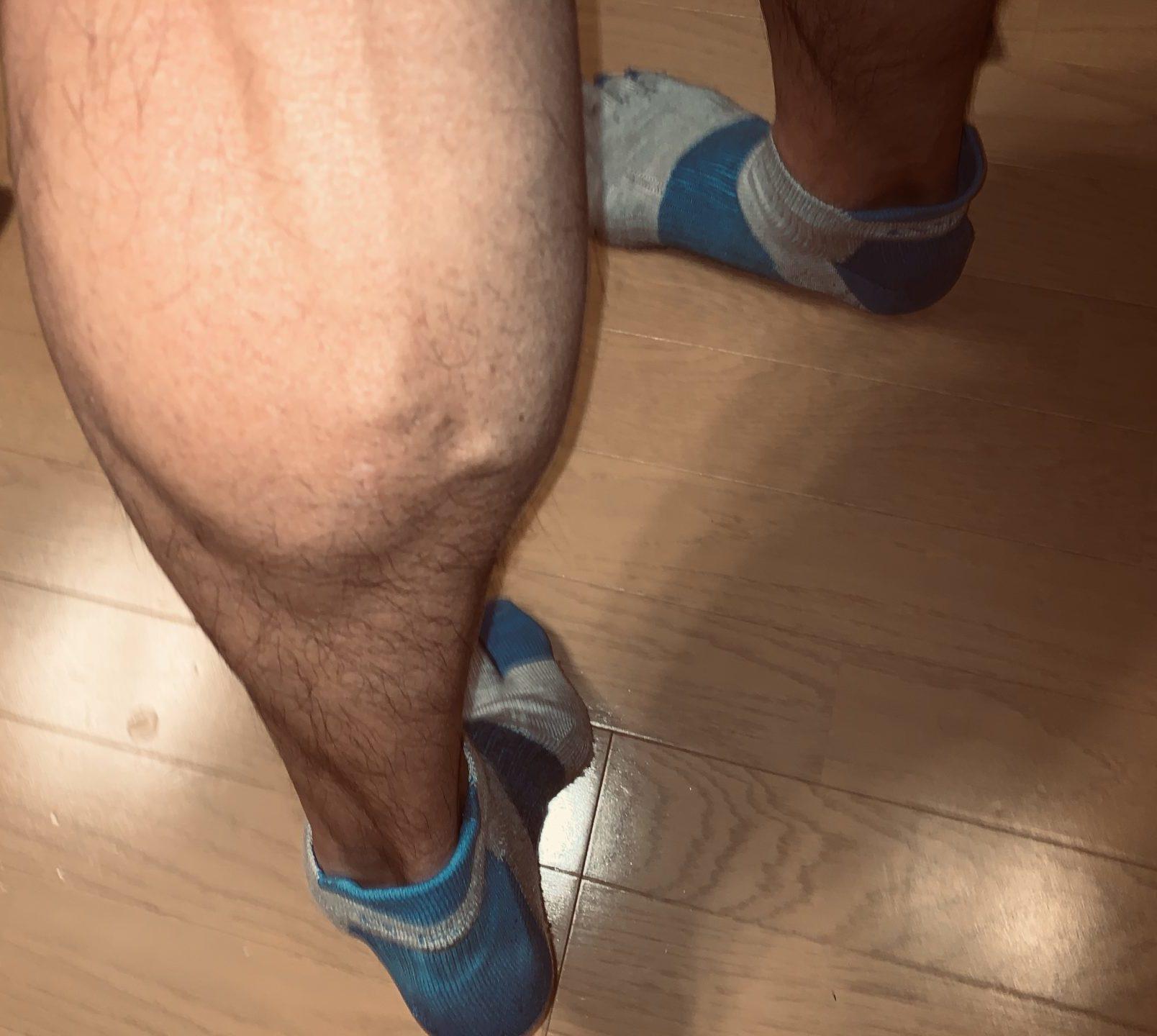 ふくらはぎのボコボコ血管は下肢静脈瘤