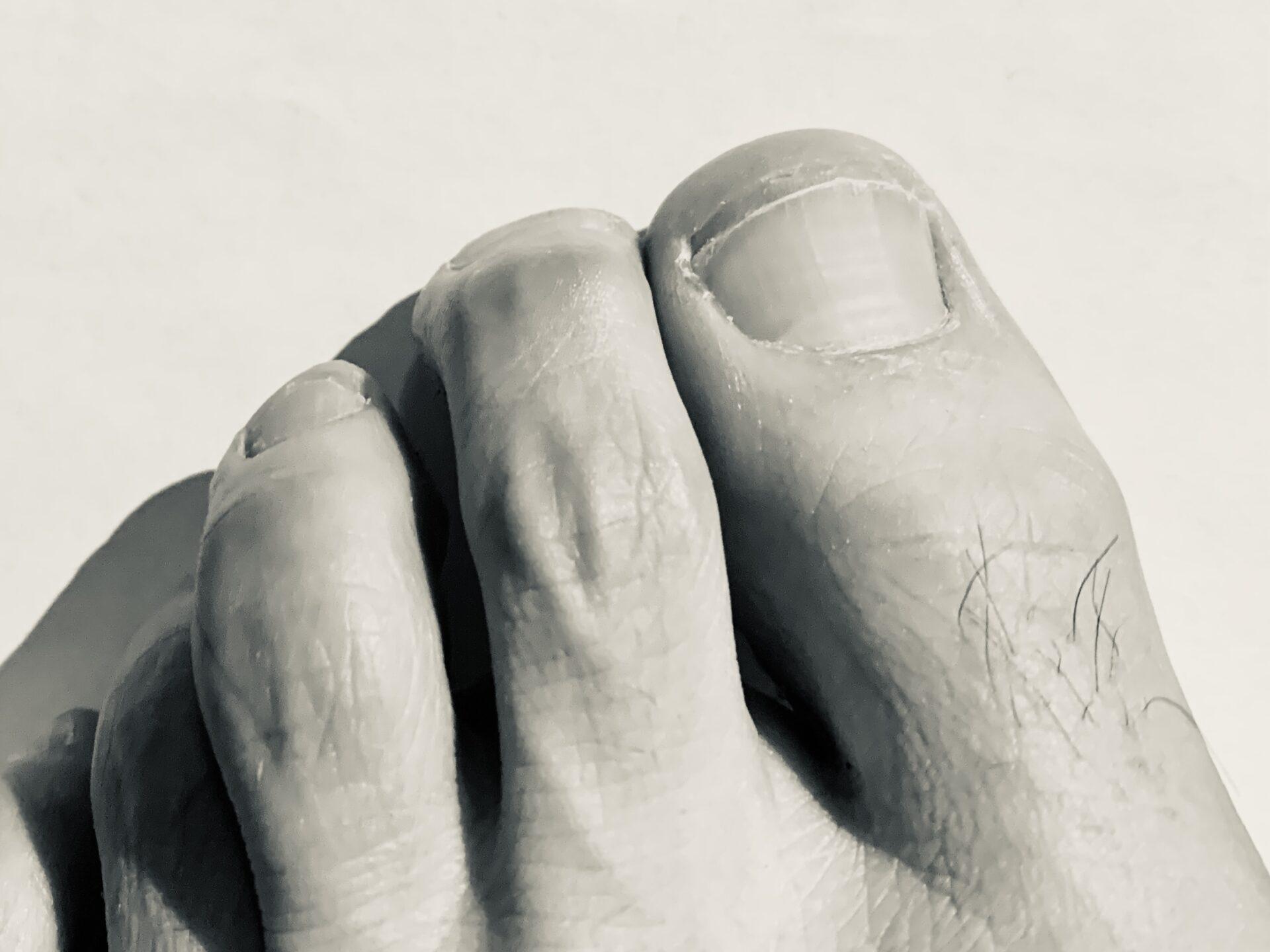 ランニンング障害、爪が剥がれる